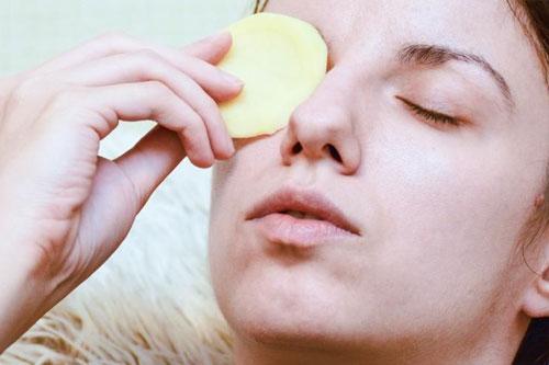 Tips menghilangkan kantong mata secara alami dengan kentang