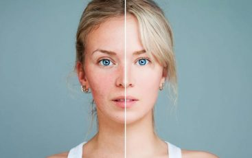 Skincare penghilang bopeng