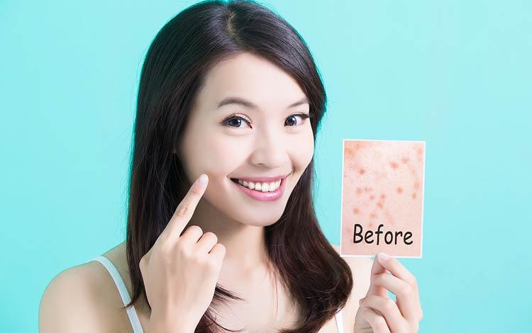 15 Rekomendasi Skincare Untuk Kulit Berjerawat